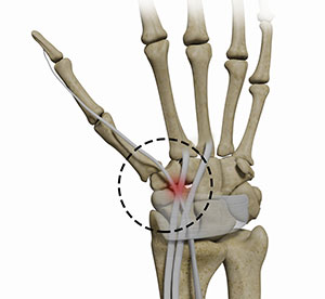 Distal Intersection Syndrome
