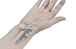 Wrist Open Reduction and Internal Fixation
